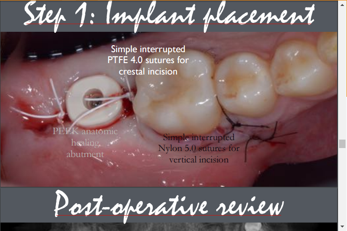 Posterior Implant Placement With Wisdom Tooth Extraction